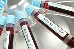 Coronavirus, 301 nuovi casi in Puglia. 30 contagi e un decesso nella Bat